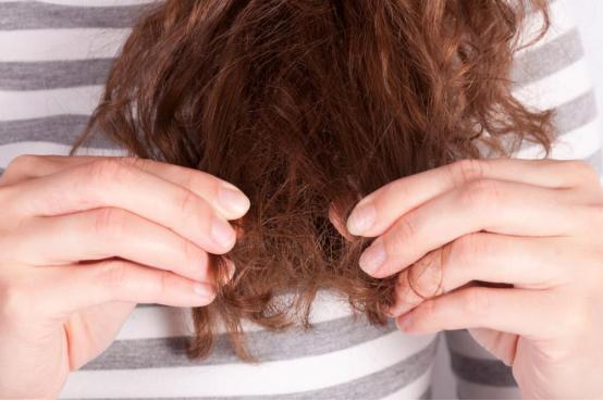 Dos and Don'ts of Hair loss